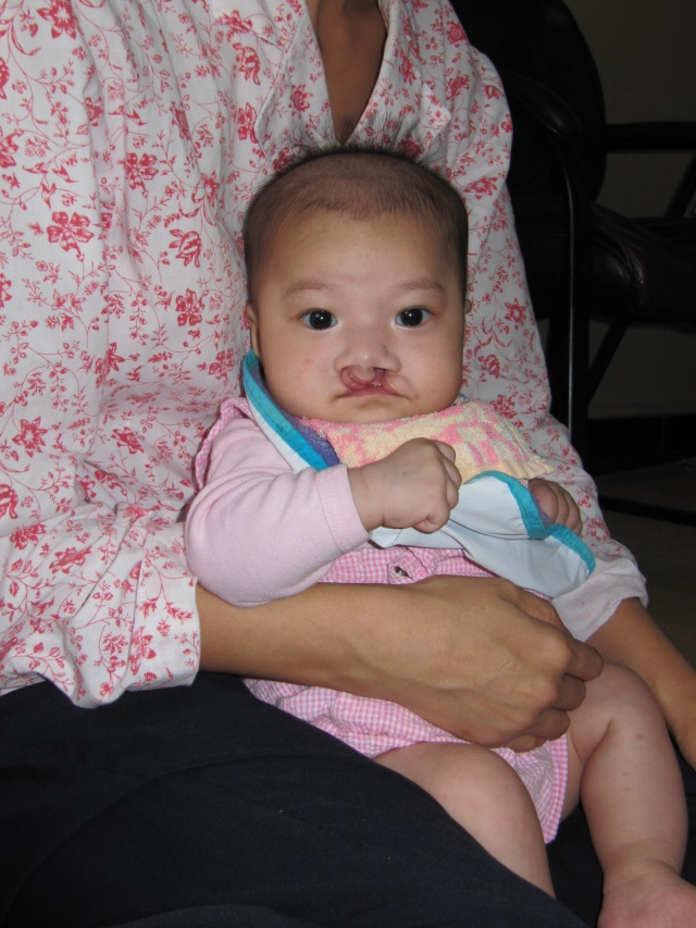 A baby with cleft lip/palate at TCH