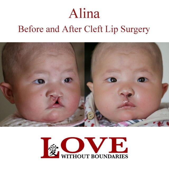 Alina-B-and-A-square