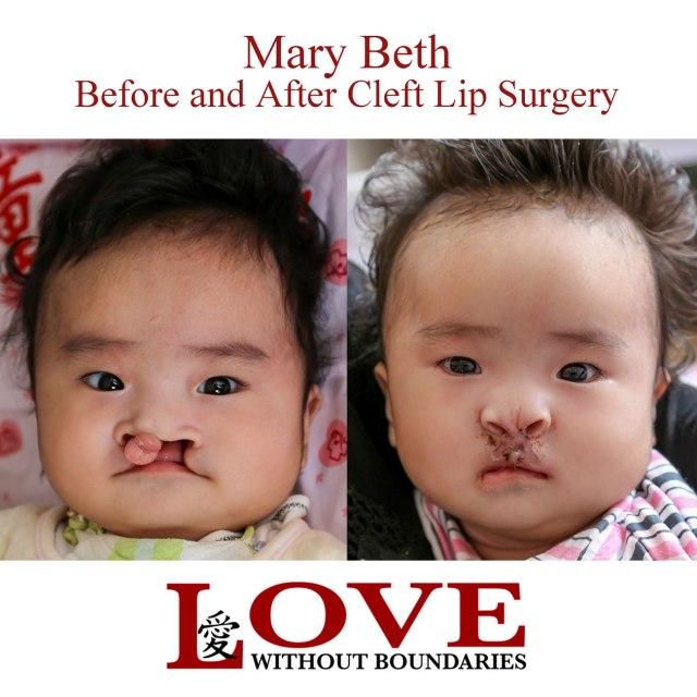 Mary-Beth-B-&-A-2
